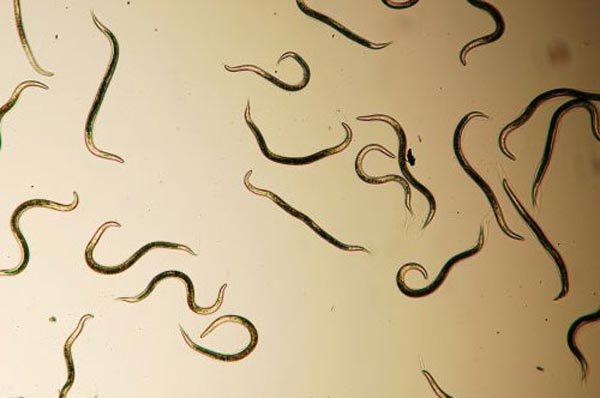 Личинки аскарид мигрируют по всему организму и могут попасть в любой орган