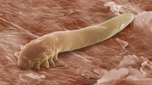 Демодекс – это клещ-паразит, который обитает под кожей человека.