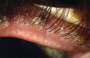 Попадание паразита в волосяной фолликул, может иметь тяжелые последствия