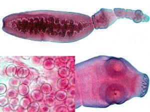 Эхинококк – это ленточный червь длиной около 5 мм, имеющий сколекс с присосками и короной, шейку и членики