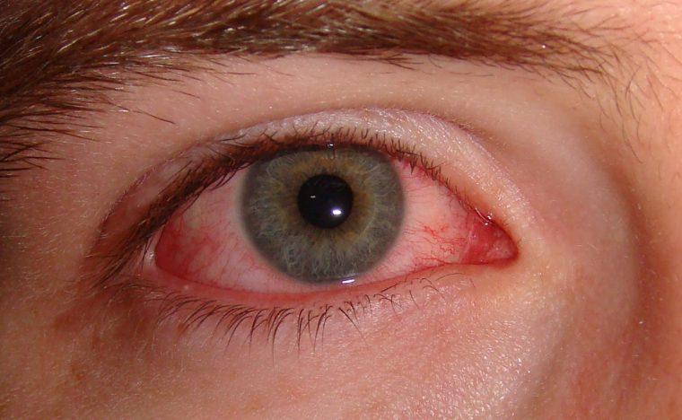 В результате заражения поражаются слизмстые оболочки глаза