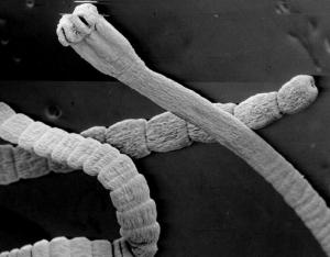 Личинки этого вида паразитов попадают в организм с мясом рыбы