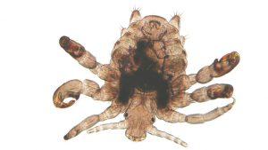 Вошь - мелкий паразит человека