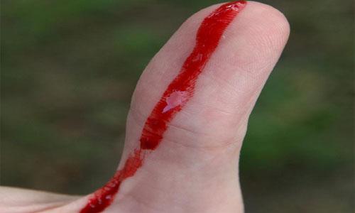 Инфекция попадает в организм человека через открытую рану
