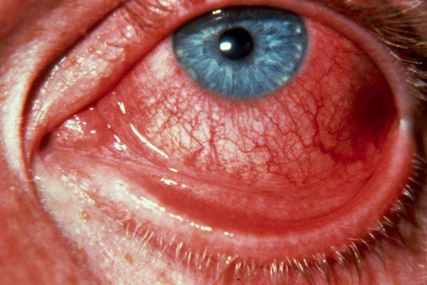 Лихорадка поражает слизистые оболочки