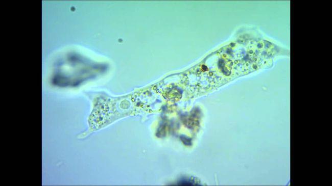 Амебиаз кишечника (амебная дизентерия)