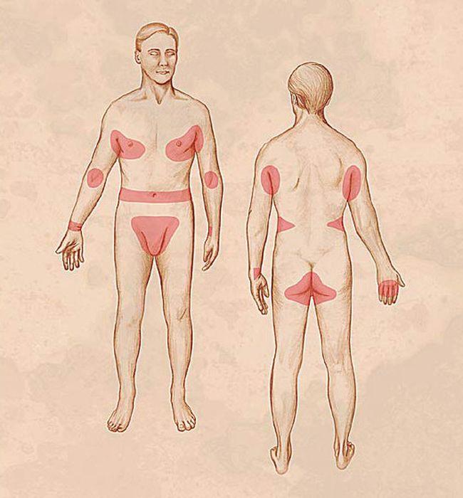 Навязчивый изматывающий зуд и парно расположенные на теле участки сыпи являются основными симптомами чесотки