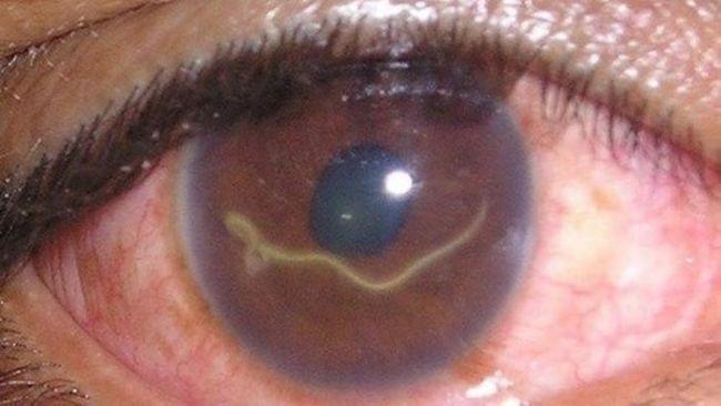 Глазной дифиляриоз. Распознать паразита обычно легко, его очертания четко прослеживаются под кожными покровами или слизистой
