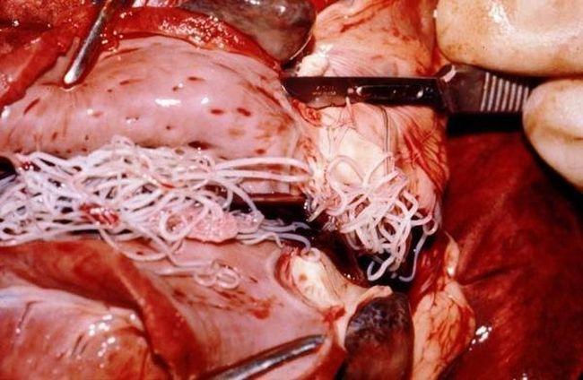 Лечение дирофиляриоза заключается в извлечении паразита из тела человека