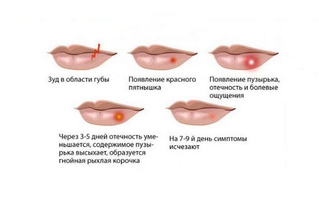 В наше время медицине знакомы разные виды поражений вирусом герпеса, но часто страдают именно слизистые носа и рта