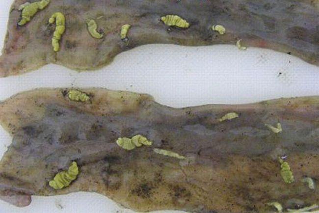 Парагонимоз- паразиты 0,3-1 см обитают в легких, образуя кисты с деструкцией ткани органа
