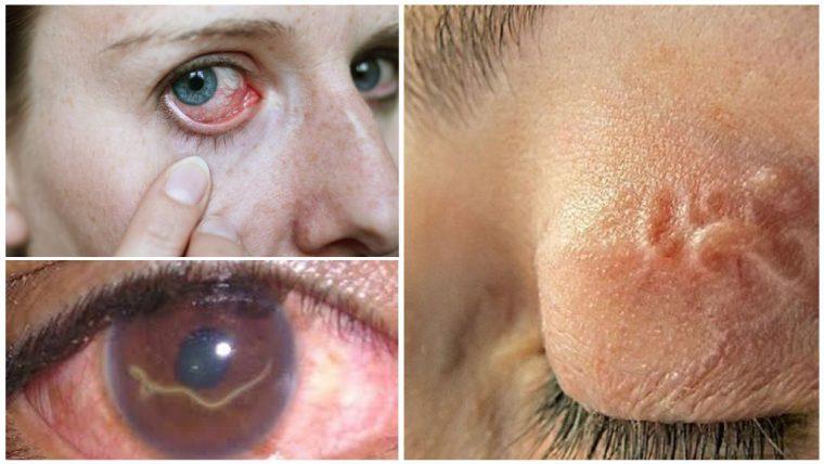 На фото личинки глистов в глазах человека.