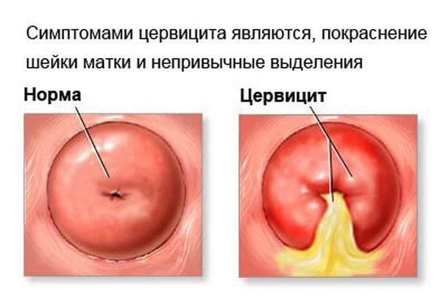 Цервицит. Часто при заражении хламидиями поражается именно слизистая оболочка шейки матки