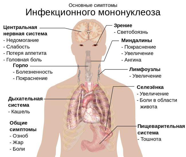 Инфекционный мононуклеоз у детей – явление нередкое, возбудителем является герпес четвертого типа