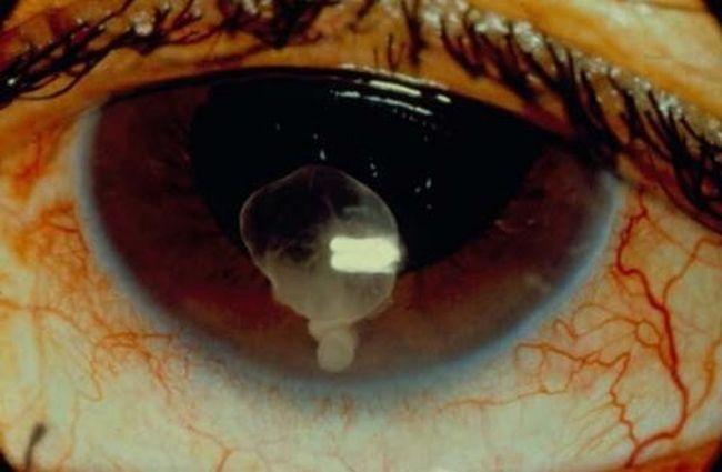 Цистицеркоз – это паразитарное заболевание, поражающие глаза и внутренние органы человека личинками свиного цепня. Фото кликабельно.