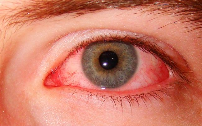 Описторхоз разрушает сосуды глаза, из-за чего возникает покраснение