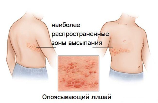 Если болезнь настигла человека в молодом возрасте, то чаще всего никаких последствий или осложнений для него она не принесет