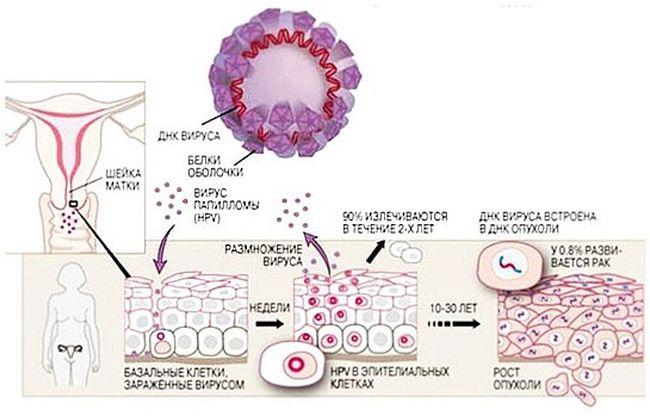 Папилломавирус вызывает не только генитальные папилломы у женщин, но и другие доброкачественные новообразования