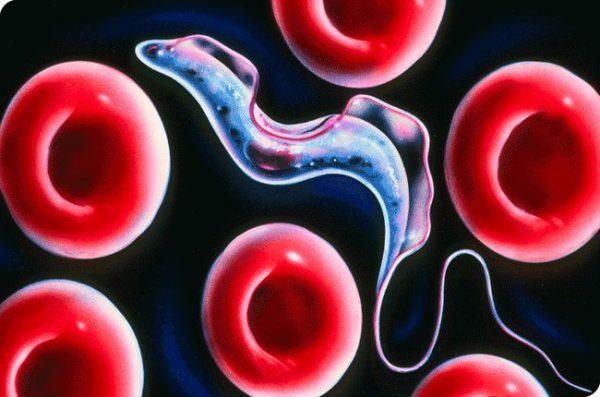 Научное название сонной болезни – африканский трипаносомоз