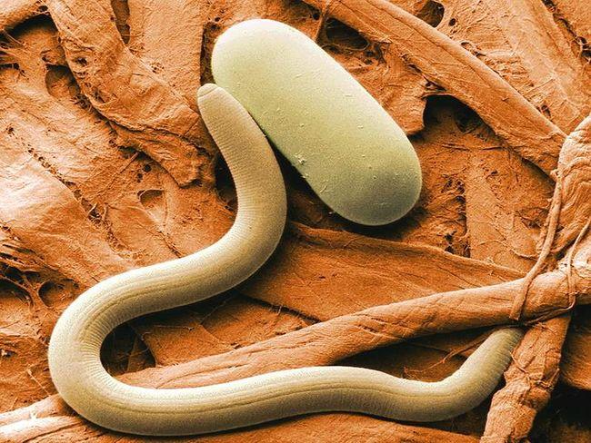Трихинеллёз – это глистная инвазия (заражение), вызываемая паразитическим червём Trichinella Spiralis