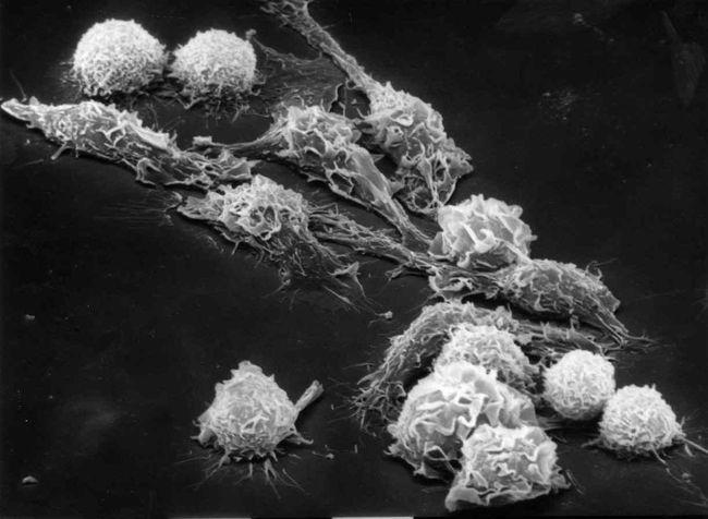 Вирус Эпштейна-Барр относится к гаммагерпесвирусам