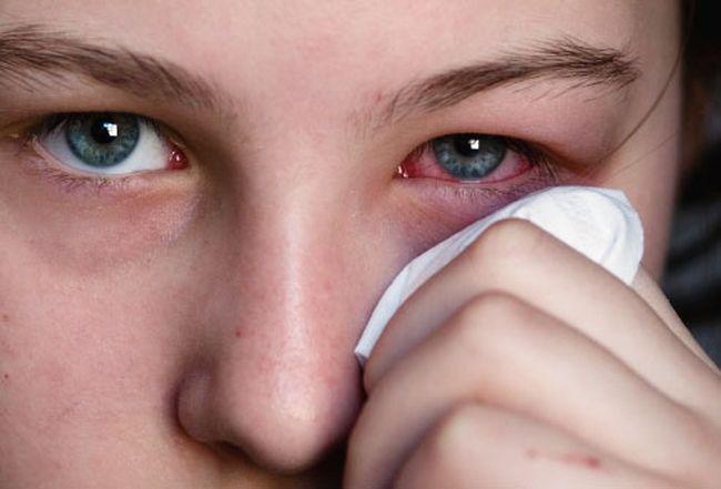 Вирусный конъюнктивит. После попадания вируса в организм проходит около двух недель, затем начинают появляться симптомы острого вирусного конъюнктивита