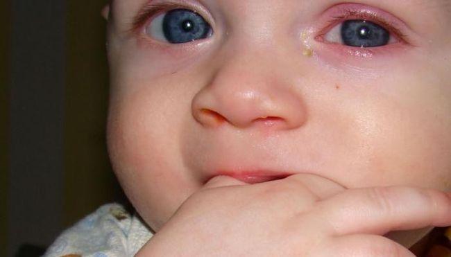 При вирусном поражении выделение слизисто-серозное, если присоединилась бактерия – оно становится гнойным