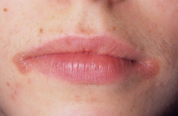 Областью заражения зачастую подвергаются губы