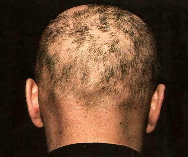 Начинают появляться безволосые участки на волосистых частях тела