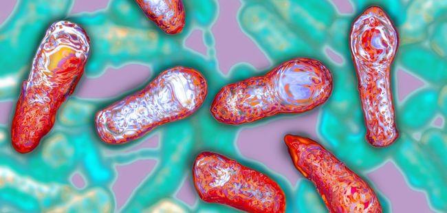 Ботулизм – это острая инфекция, которая начинается из-за попадания в человеческое тело ботулотоксина