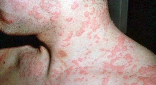 Красный плоский лишай – это длительный воспалительный процесс на коже и слизистых оболочках