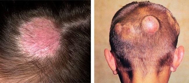 Трихофития вызывается зоофильными и антропофильными грибками, поражающими кожу и ее придатки