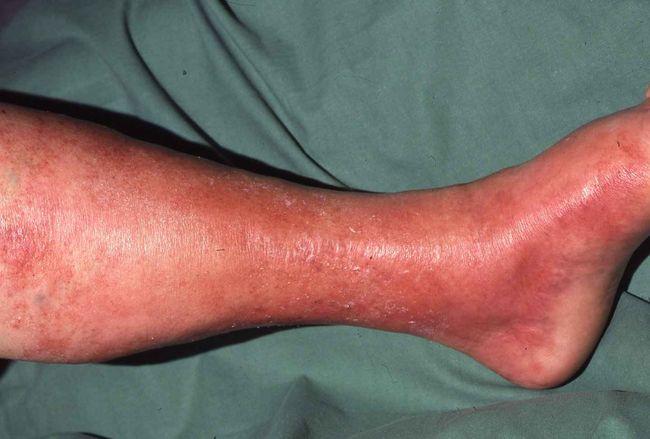 Рожистое воспаление – инфекционное заболевание, вызываемое бета-гемолитическим стрептококком группы В