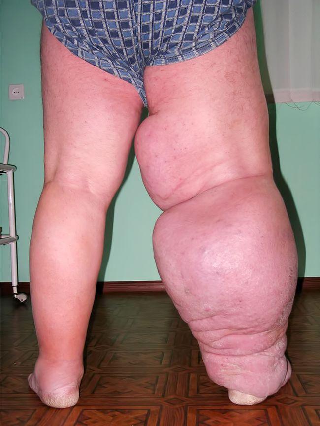 Лечение рожистого воспаления ноги начинается с приема антибактериальных препаратов 1-ой группы