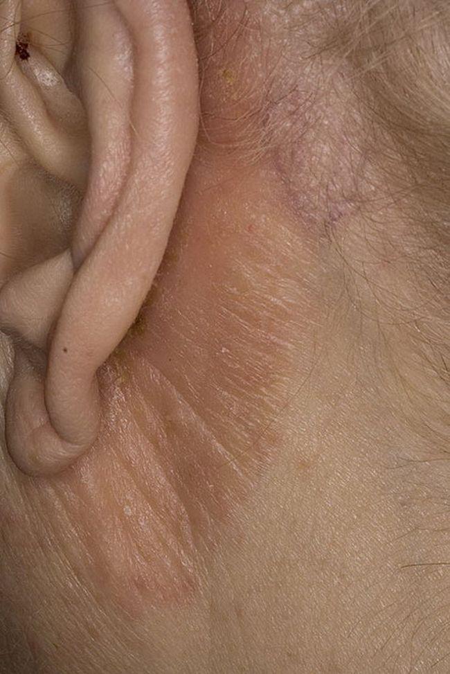 Себорейный дерматит на теле может быть обусловлен месторасположением участка поражения, типом волосяных луковиц, количеством сальных желез и т.д