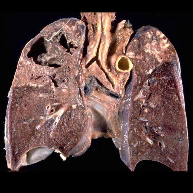 Туберкулез у взрослых и детей – опасная легочная инфекция, грозящая тяжелыми для здоровья последствиями и даже смертью