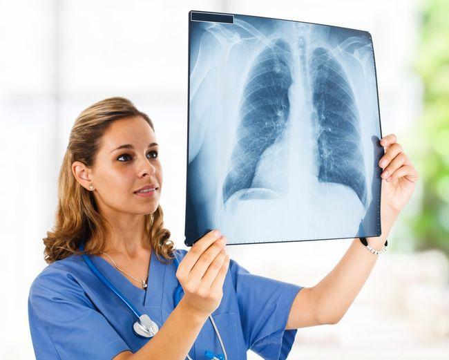Чтобы определить правильное лечение туберкулеза легких, необходимо вовремя пройти диагностику и сделать рентген