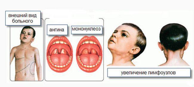Мононуклеоз - это острое заболевание вирусного генеза, которое по симптомам напоминает обычную ангину