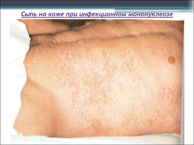 При мононуклеозе часто возникает сыпь на коже