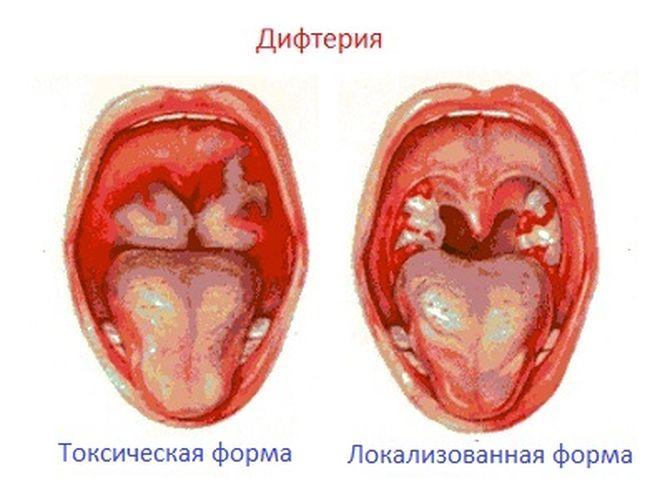 Вид токсической и локализованной формы дифтерии