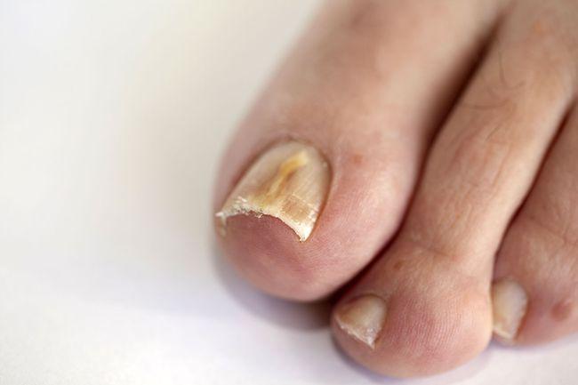Проявление грибка ногтей на пальцах ноги