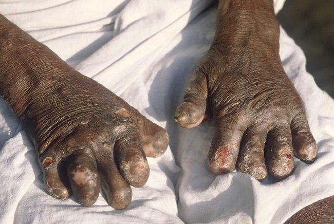 Из-за проказы может произойти потеря фаланг пальцев
