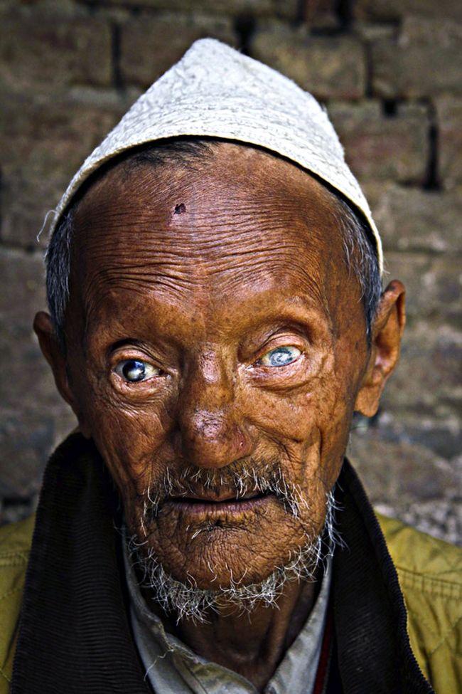 В случае, если проказа поражает нервы лица, возможна полная потеря зрения