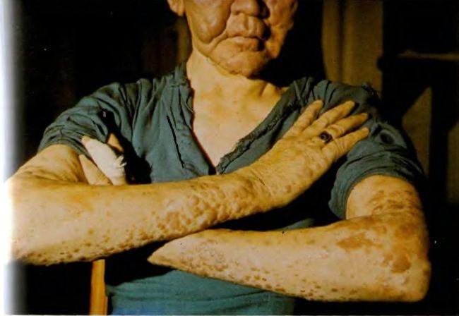 Заболевание проказа (лепра) возникает из-за поражения организма микроорганизмами Mycobacterium leprae