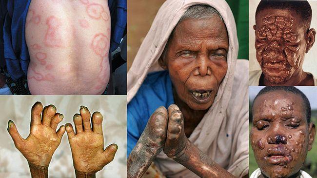 Проявления рецидива лепры на теле и лице человека