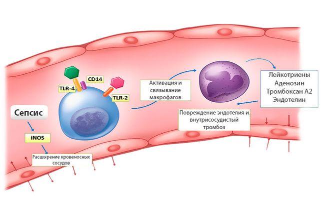 Когда инфекция не утихает и с кровью распространяется по организму - возникает сепсис