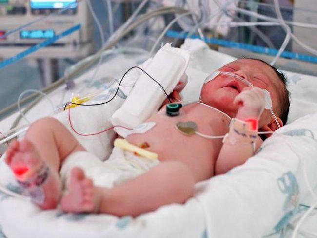 Недоношенные дети гораздо чаще подвержены заболеванию сепсис