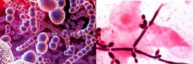 Заеда (ангулит, ангулярный стоматит, ангулярный хейлит) — заболевание слизистой оболочки и кожи углов рта, вызываемое стрептококками (стрептококковая заеда) или дрожжеподобными грибками рода Candida (дрожжевая, или кандидамикотическая, заеда)
