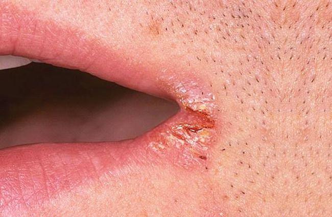 При заедах больно есть, говорить, а в запущенных случаях поражение превращается в язвочки, которые причиняют еще больший дискомфорт