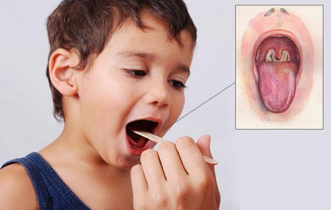 Дифтерия у детей в наше время встречается довольно редко, такого результата добились благодаря вакцинации